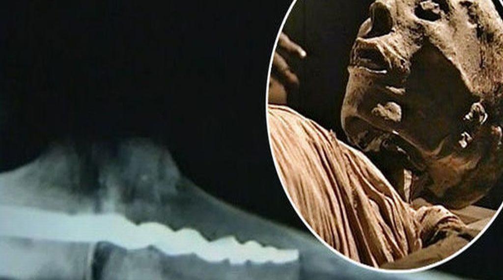 7-obiective-misterioase-de-pe-pamant-surubul-ortopedic-de-23-de-centimetri-descoperit-la-o-mumie-egipteana