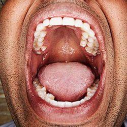 Bărbatul cu cei mai mulți dinți din lume! [VIDEO]